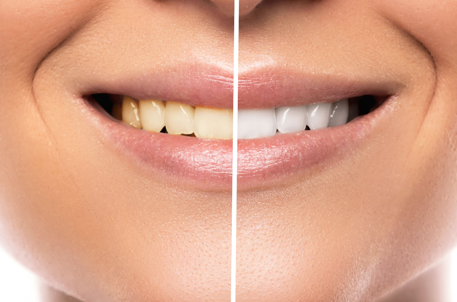 TEETH WHITENING: HOW TO WHITEN YOUR TEETH QUICKLY